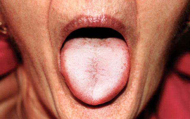 Kandida - bel jezik